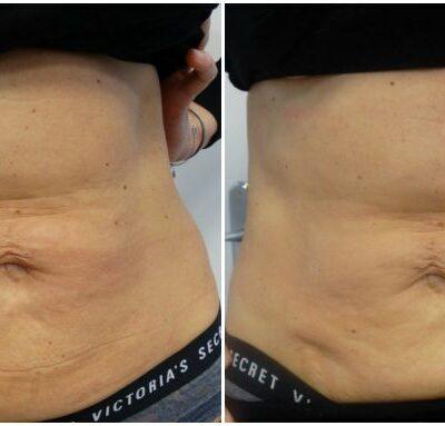 Redukcja tkanki tłuszczowej i cellulitu oraz przywrócenie napięcia i jędrności skóry