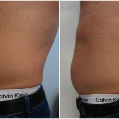 Redukcja tkanki tłuszczowej oraz przywrócenie napięcia i jędrności skóry