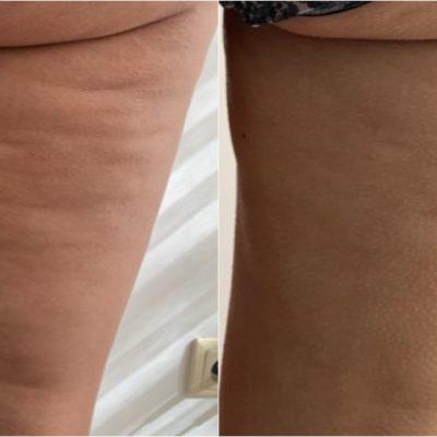 Redukcja cellulitu oraz przywrócenie napięcia i jędrności skóry